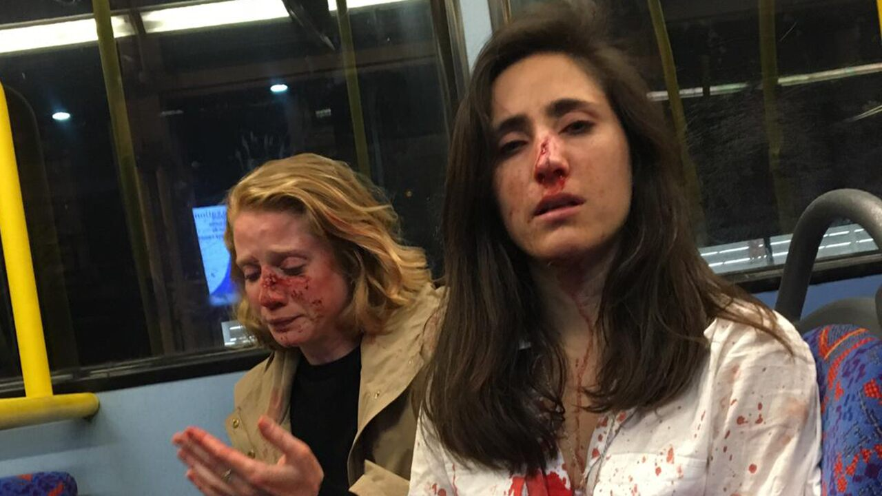 Fox news today: UK teens plead guilty in 'homophobic incident' against women who refused to kiss on London bus