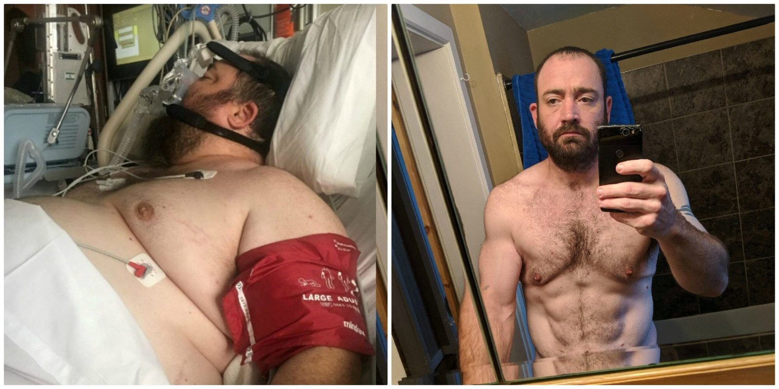 Fox News Today: Iowa man sheds half his body weight after invasive spinal surgery, says he once ate 'with no constraint'
