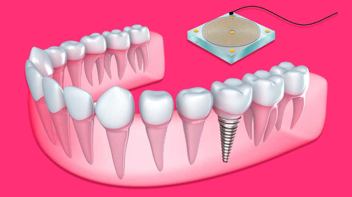 3 Things You Should Know Before You Get Your Dental Implants