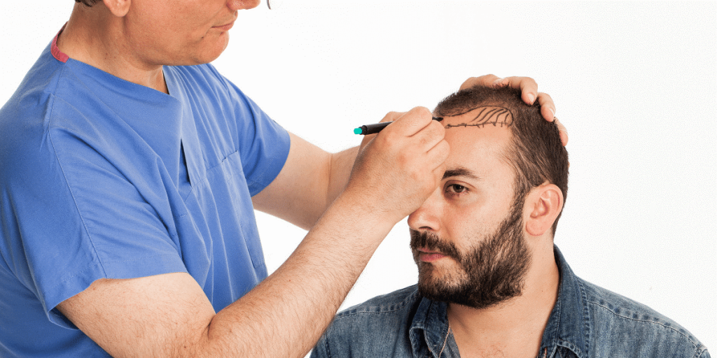 All you need to know about Hair Transplant and it Cost?