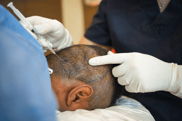 Why Pune is the Best Destination for Hair Transplant