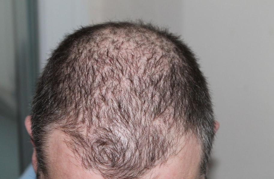 The Big 3 Of Hair Loss Treatments